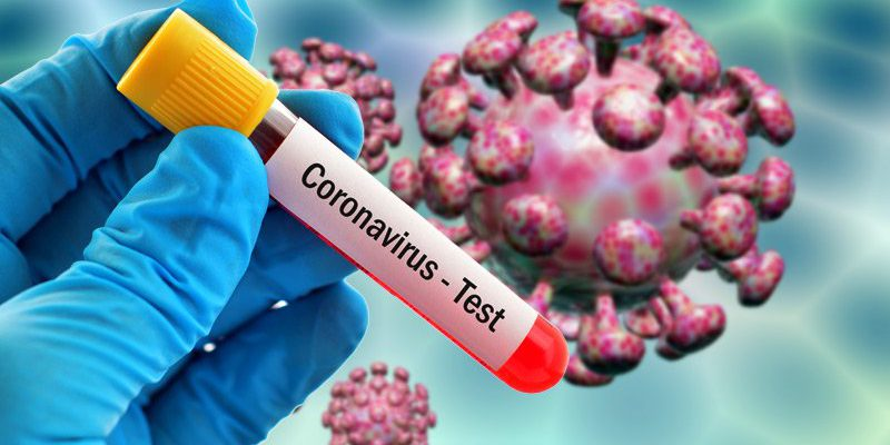 آمار مبتلایان جدید ویروس کرونا 8 اردیبهشت 99